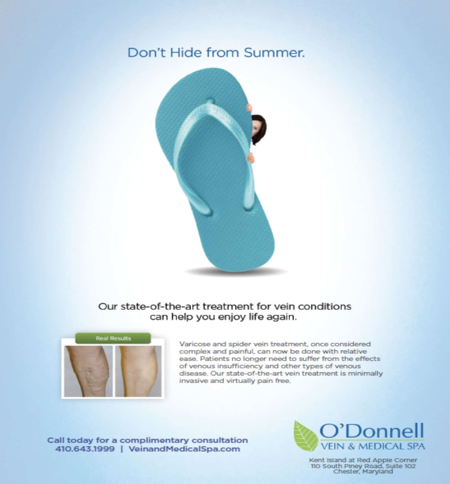 Don't Hide from Summer Ad - O'Donnell Vein